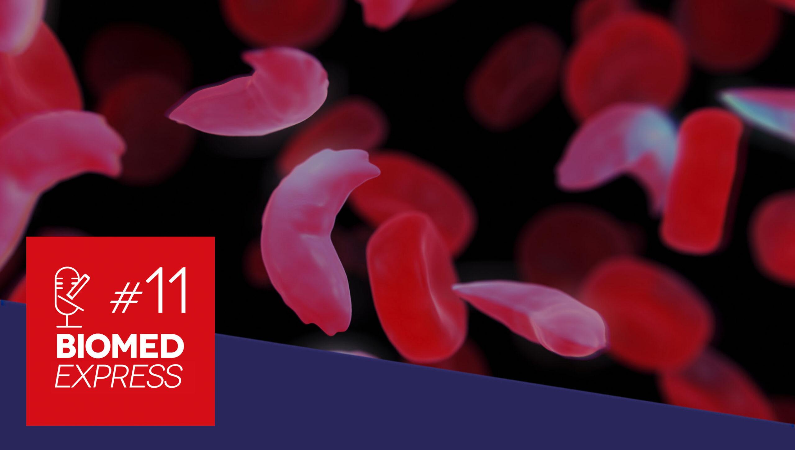 #11 Biomed Express – Corrigida Mutação que dá Origem à Anemia Falciforme